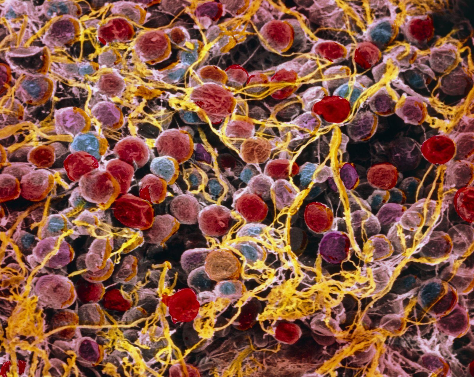 NICHT MEHR VERWENDEN! - Adipocytes/ Fettzellen