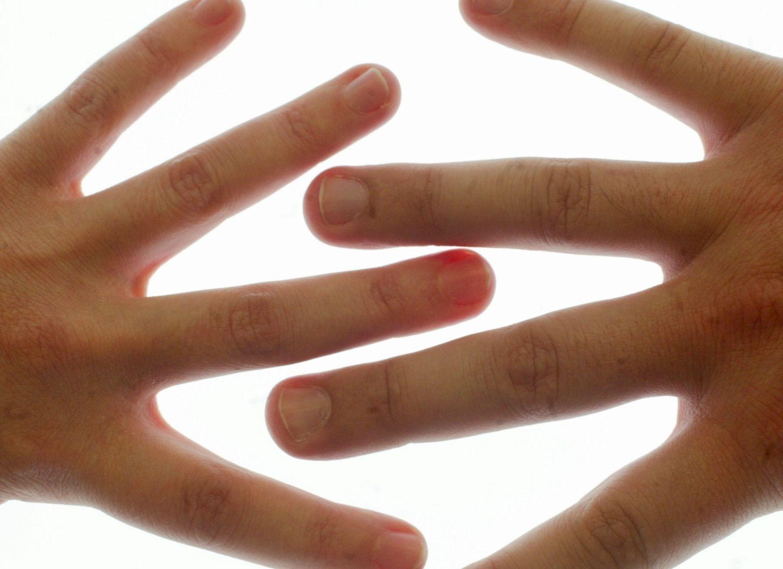 NICHT VERWENDEN Fingerlänge / Charakter / Finger