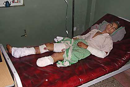 Der 16-jährige Muhammed Zaher verlor während der Angriffe auf Dschlalabad einen Teil seines linken Beins