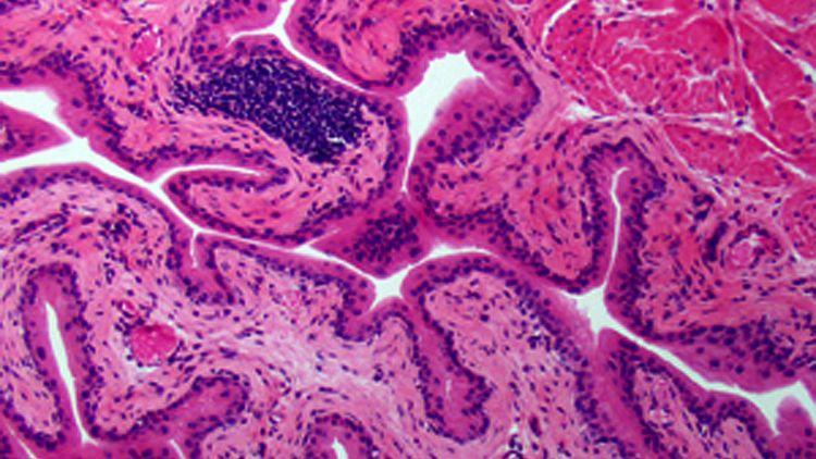 Blasengewebe in Mäusen: Meist verursachen Darmbakterien Infekte der Harnwege