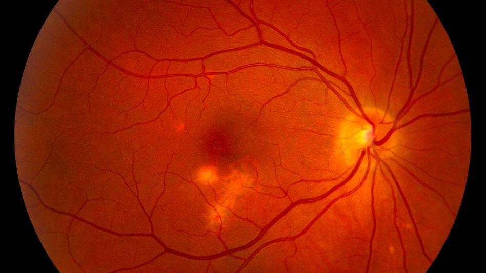Makuladegeneration: Sie ist die häufigste Erblindungsursache bei Menschen über 50