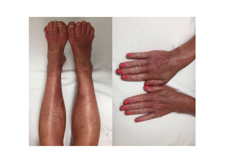 Hände und Füße der Patientin nach sechs Wochen Ernährungsumstellung und Tabletten