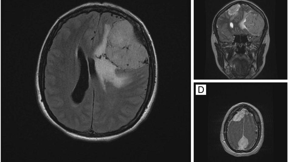 Kernspinaufnahme des Gehirns: Tumoren drücken auf Nervengewebe