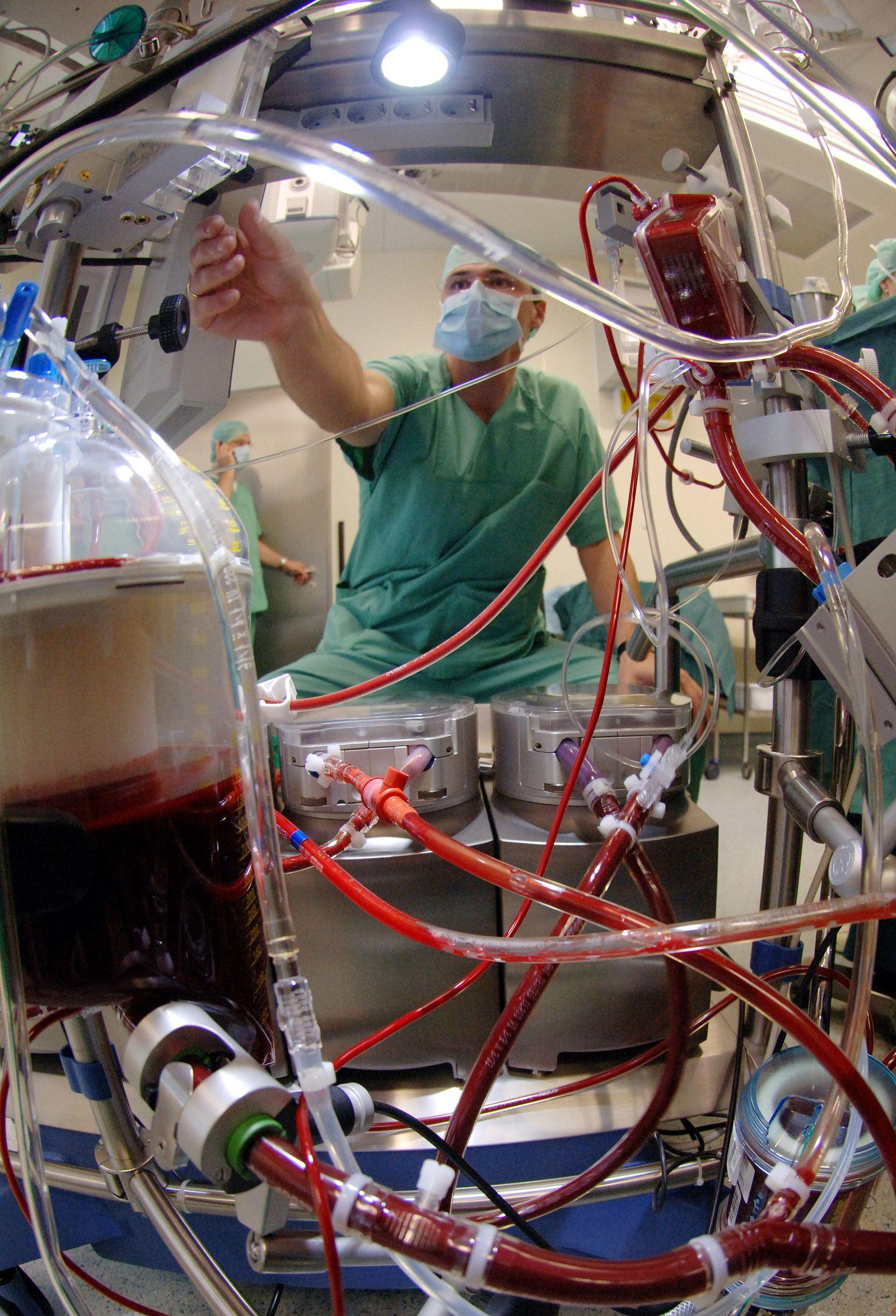 Weltpremiere für neue Herz-Lungen-Maschine