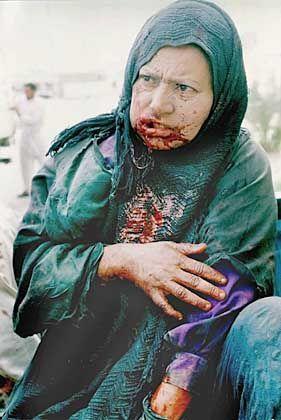 Verletzte Frau in Basra