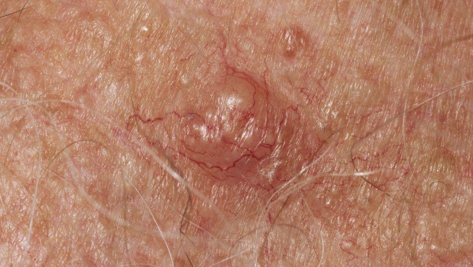 Heller Hautkrebs: Vor allem dort, wo die Sonnenstrahlung hinkommt