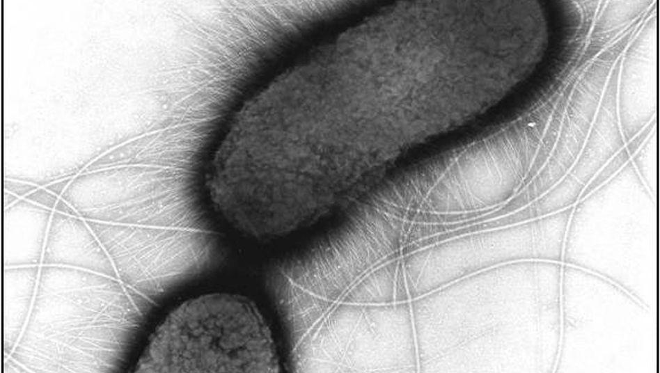 Ehec-Erreger unter dem Mikroskop: Infektionsquelle noch immer nicht geklärt