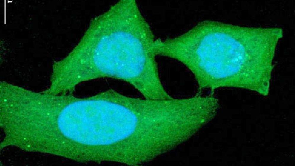 Spermidin: Gebremste Zellalterung