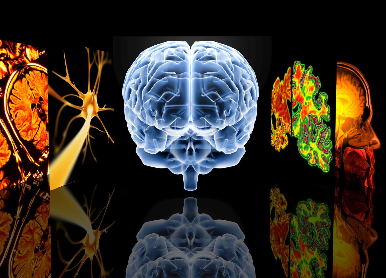 NICHT MEHR VERWENDEN! - Gehirn / Forschung / Alzheimer