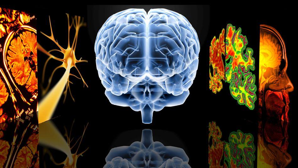 Schaltzentrale: Weltweit sind mehr als 35 Millionen Menschen an Alzheimer erkrankt