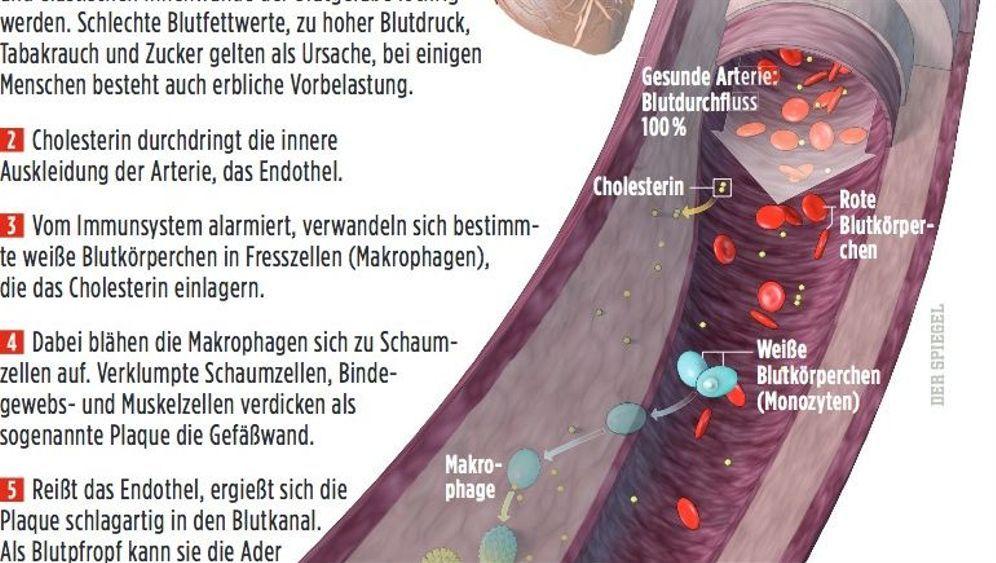 Verengte Herzkranzgefäße: Bypass, Stent, Ballon und Co.