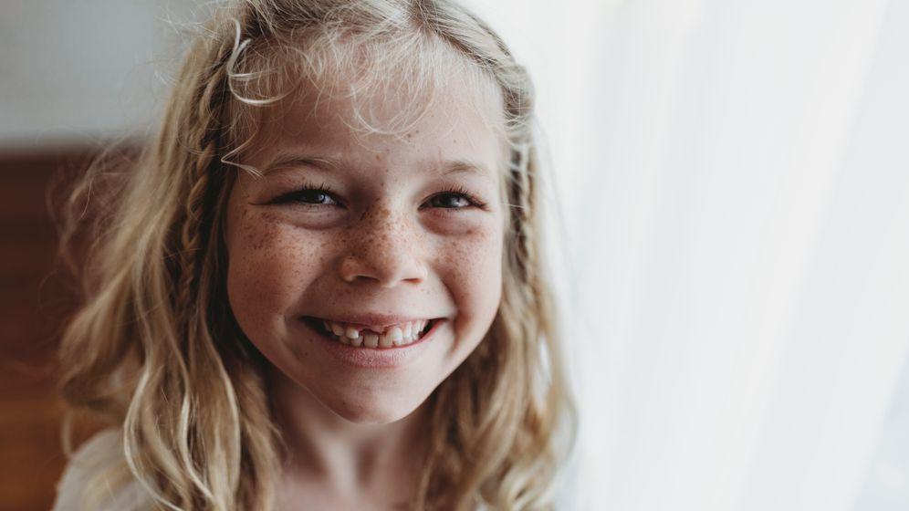 Kind mit Zahnlücke (Symbolbild): Betroffen von MIH sind in erster Linie bleibende Zähne