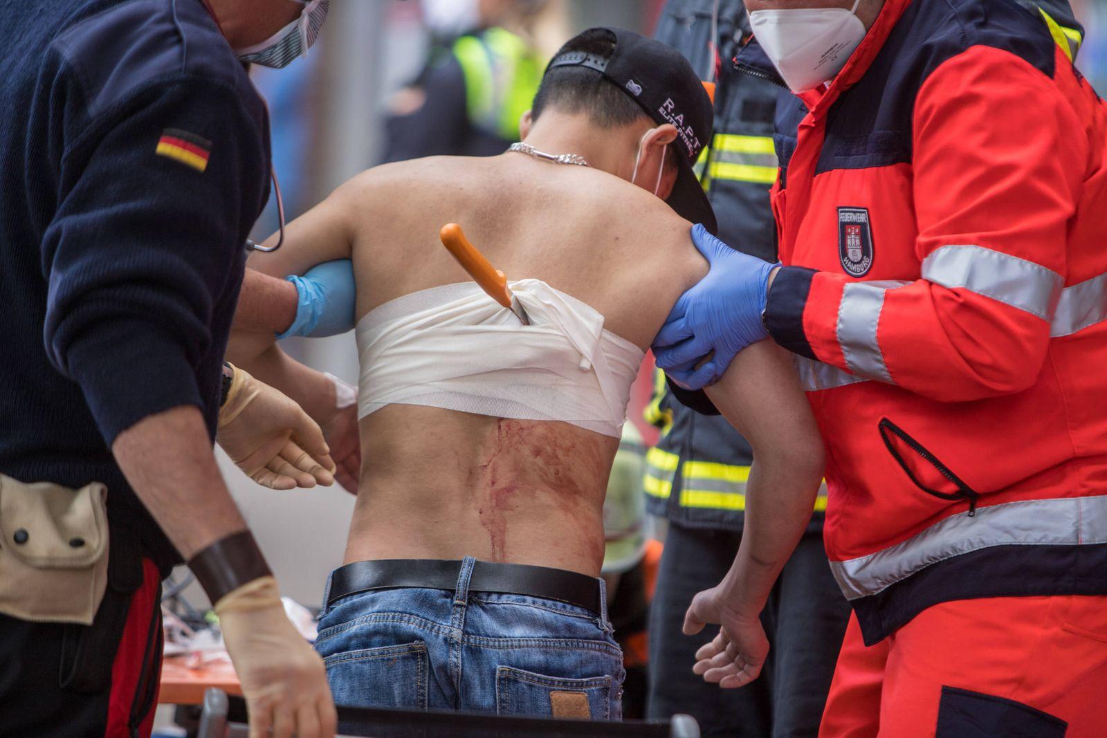 Messerangriff auf offener Straße - Mann bekommt Brotmesser in den Rücken gerammt! - Not-Op! 15.05.20 - Hamburg: Messera