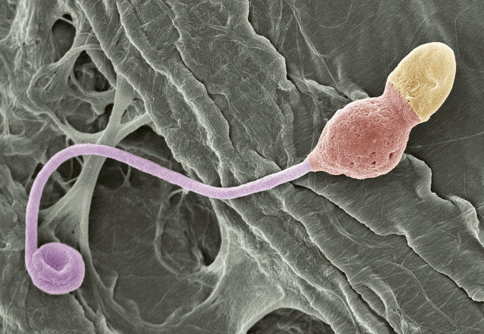 NICHT MEHR VERWENDEN! - Spermien / Deformation