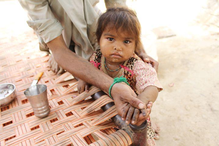 Der Finger des Kindes wurde schwarz markiert, als Zeichen dafür, dass das Mädchen die Polio-Impfung bereits erhalten hat