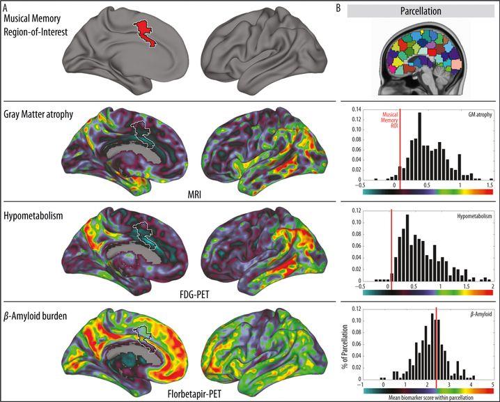 Hirnscans: Die Darstellung zeigt die Veränderungen im Gehirn von Alzheimer-Patienten, die Region für das Musikgedächtnis ist in der oberen Reihe rot markiert. Die zweite Reihe von oben veranschaulicht Gebiete mit maximalem Nervenzellverlust, die dritte den Rückgang des Stoffwechsel und die vierte Amyloid-Proteinablagerungen. Wenig betroffene Bereiche sind dort violett dargestellt. (Zum Betrachten der vollständigen Grafik bitte Anklicken)