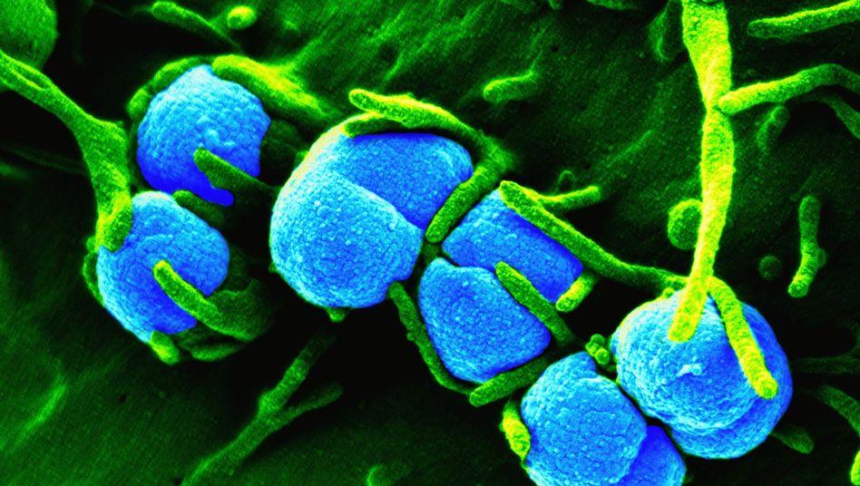 Neisseria gonorrhoeae: Bakterien werden beim Geschlechtsverkehr übertragen
