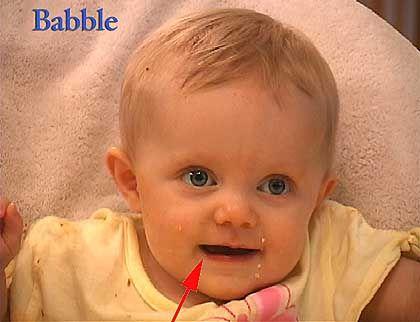 Videobild eines brabbelnden Babys: Stärker bewegte rechte Mundhälfte