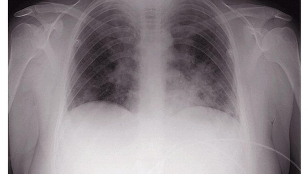 Rätselhafter Patient: Schleierhafte Lunge