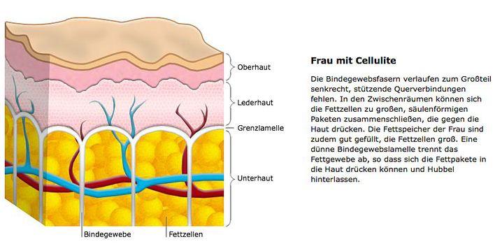 Frau mit Cellulite: Fettzellen drücken sich in die obere Hautschicht