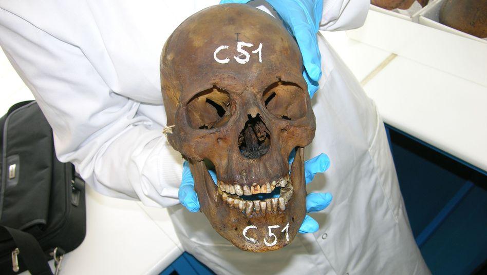 Der Beweis: Schädel einer Mumie aus Gournah (641- 525 v. Chr.), untersucht im französischen Lyon