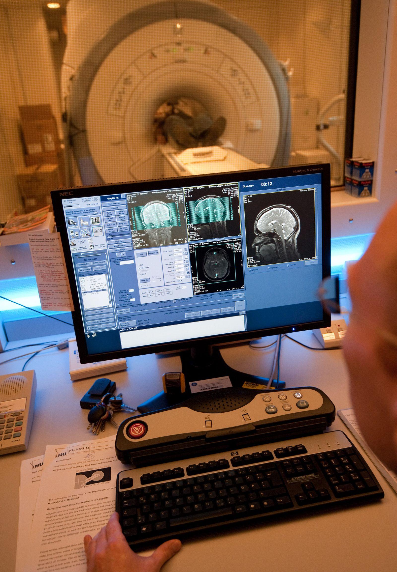 Bilder des Gehirns verraten Alter des Menschen