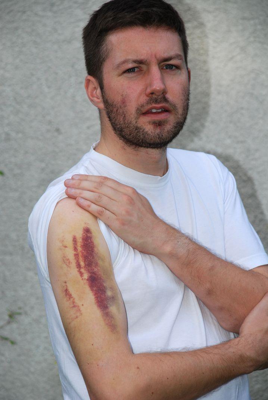Rechtsanwalt Andreas Moser zeigt die Spuren, die iranische Polizeiknüppel auf seinem Arm hinterlassen haben