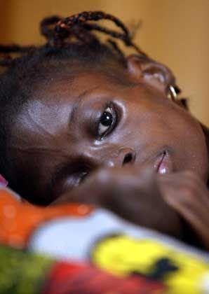 Aids-krank: Jeder dritte Infizierte in Afrika stirbt durch eine zusätzliche Tuberkulose-Infektion
