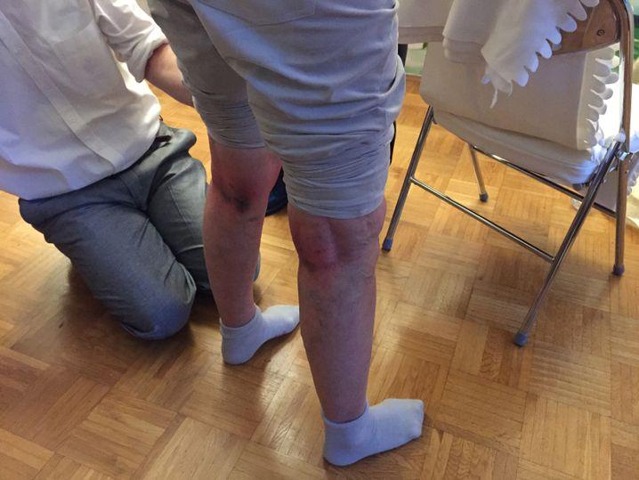 Beine einer Teilnehmerin: Mit Klopfen zur Heilung?