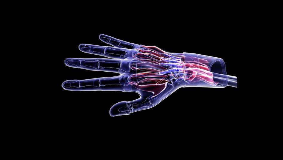 Anatomie der Hand (Illustration): Lebensgefährliche Toxine durch Infektion