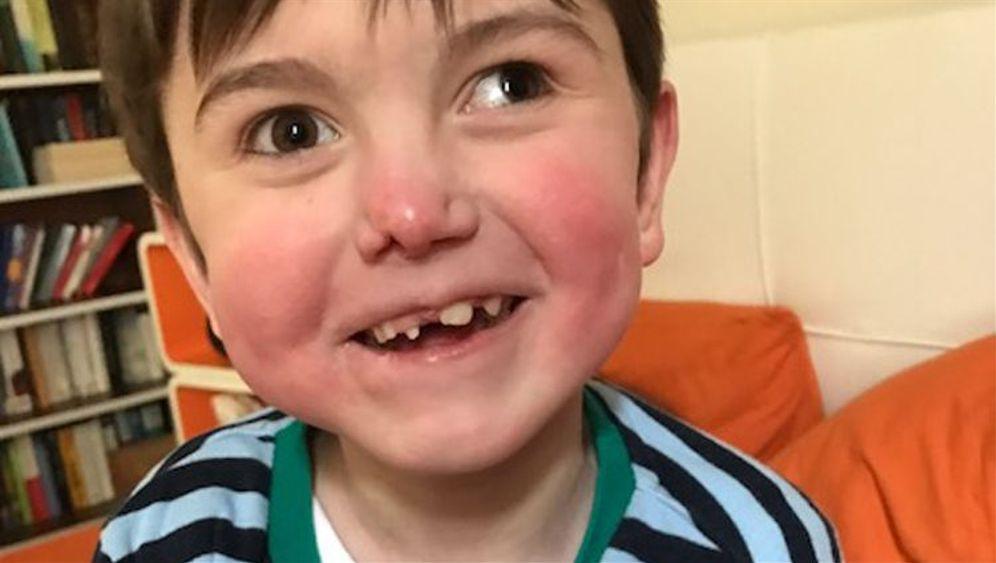 Neunjähriger Tim: Leben mit Behinderung