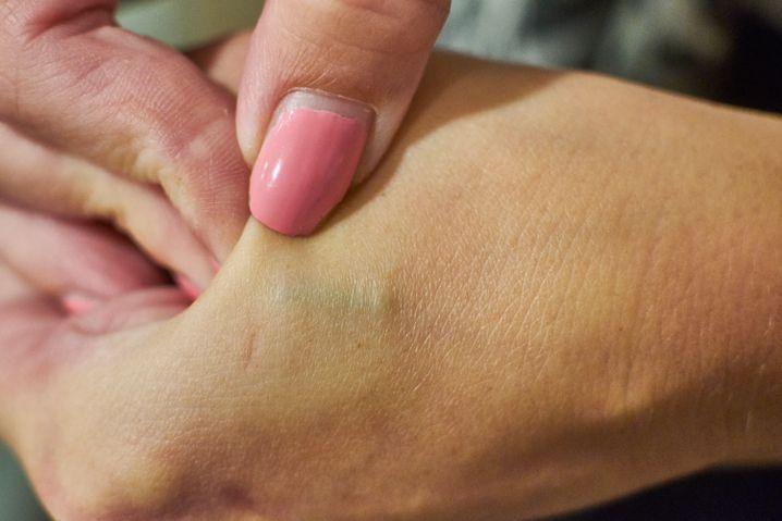 Eine schwedische Tui-Mitarbeiterin mit Chip unter der Haut - der Mikrochip ist kaum zu erkennen