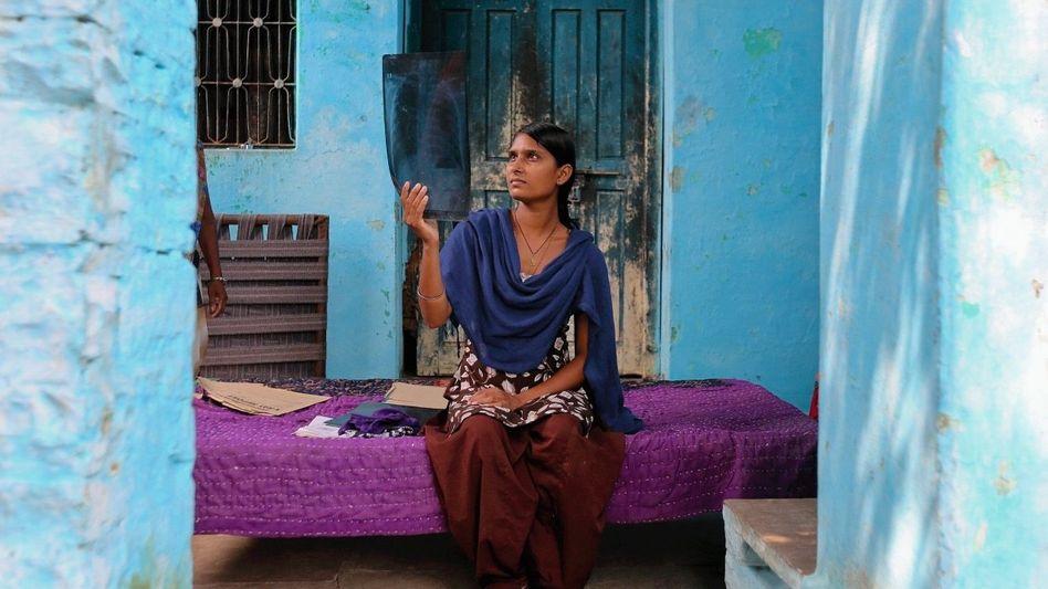 Silikose-Patientin Yadav: »Die Ärzte wussten nicht, was ich habe«