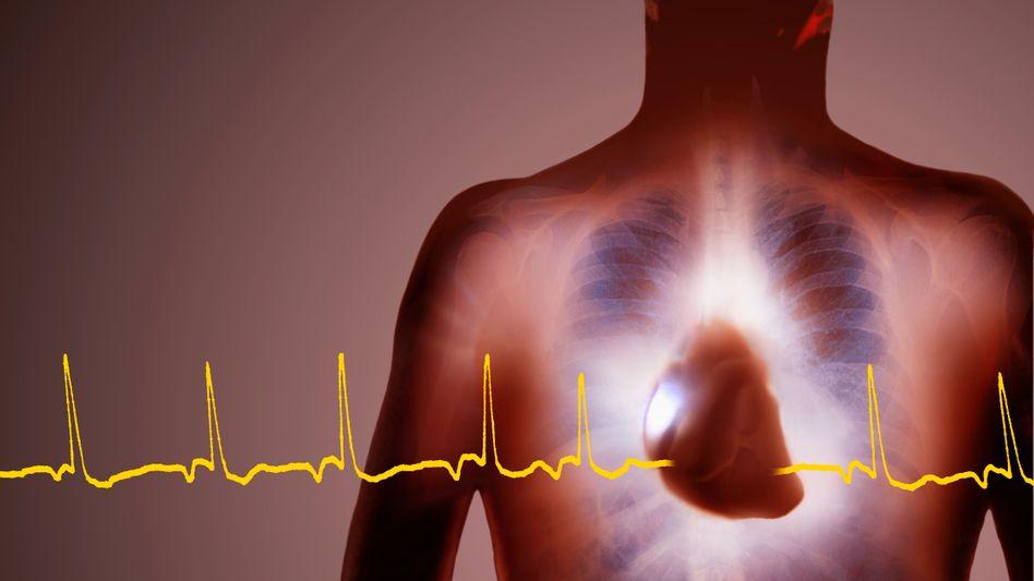 Herzschlag: Mini-AKW in der Brust