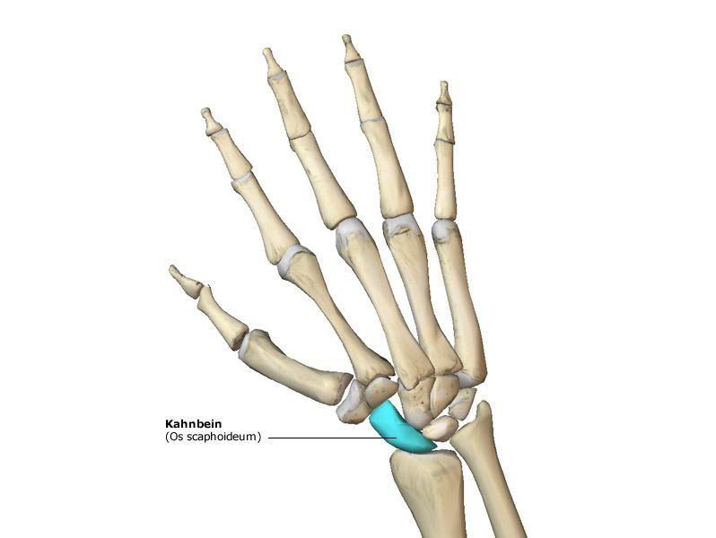 Brechen schmerzen handgelenk ohne Handgelenksbruch