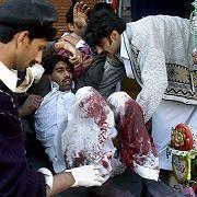 Anschlagsopfer in Peshawar: Der pakistanische Staat kapituliert vor den Taliban