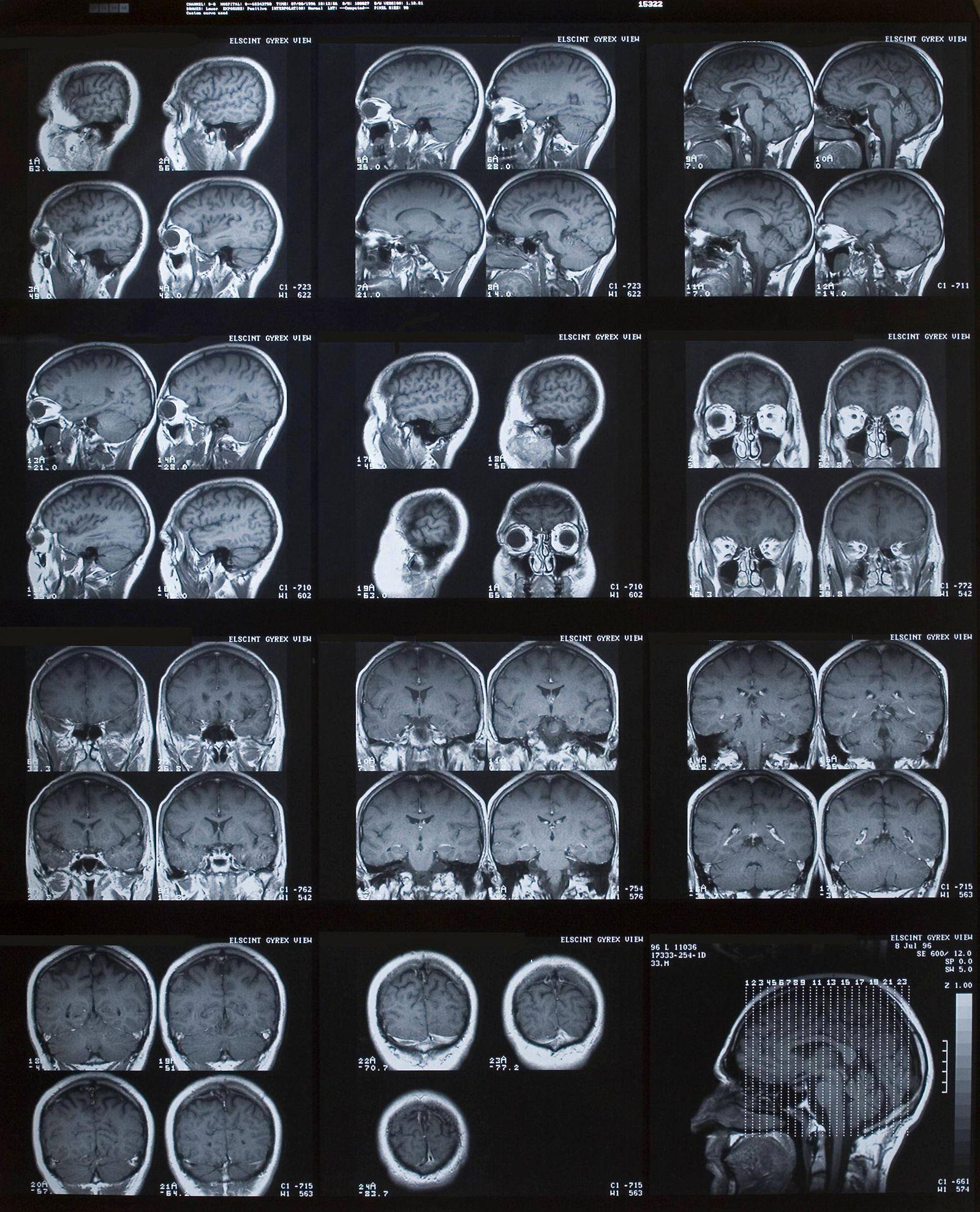 EINMALIGE VERWENDUNG Roentgenbild/ Gehirn