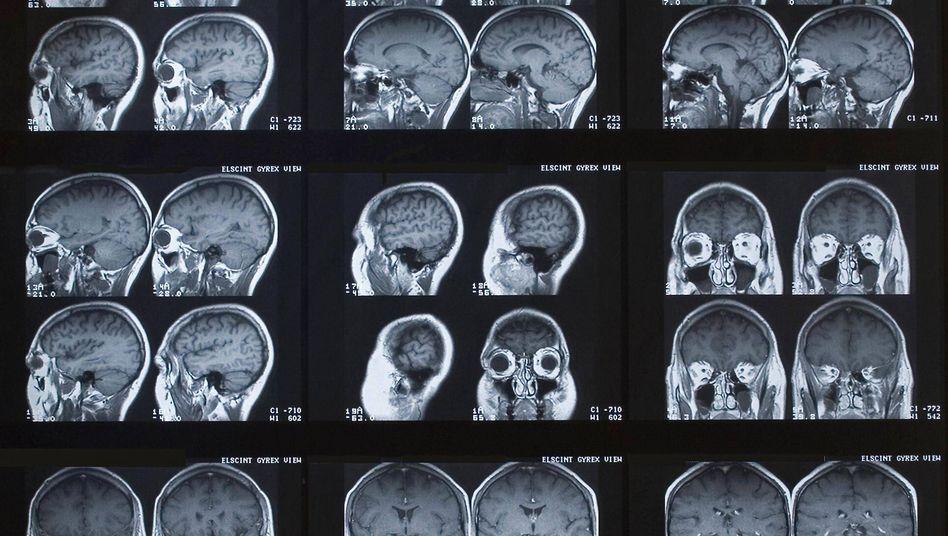 Röntgenbilder von Köpfen: Rund 50 Länder sollen von dem Datensicherheitsproblem betroffen sein (Symbolbild)