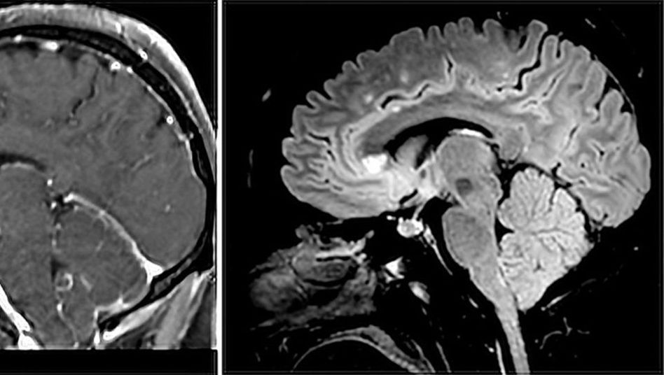 In zwei verschieden gewichteten MRT-Bildern zeigt sich unter anderem ein großer heller Fleck im sogenannten Balken, dem Corpus callosum (auf mittlerer Höhe)