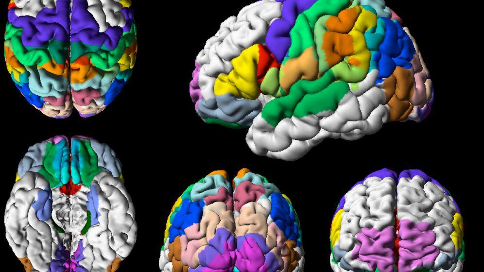 Gehirn in 3D: Brodmann-Areale waren gestern