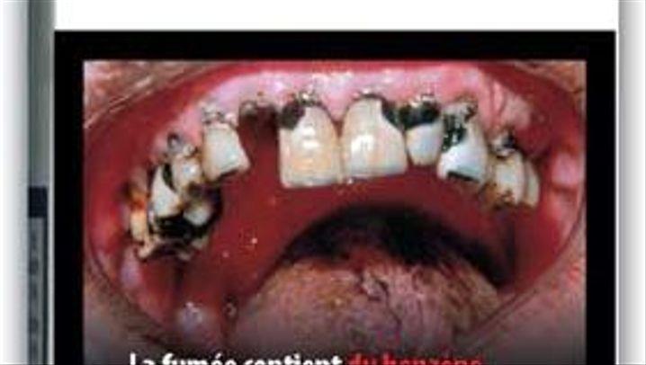 Schock-Kampagne: EU veröffentlicht Ekel-Bilder gegen das Rauchen