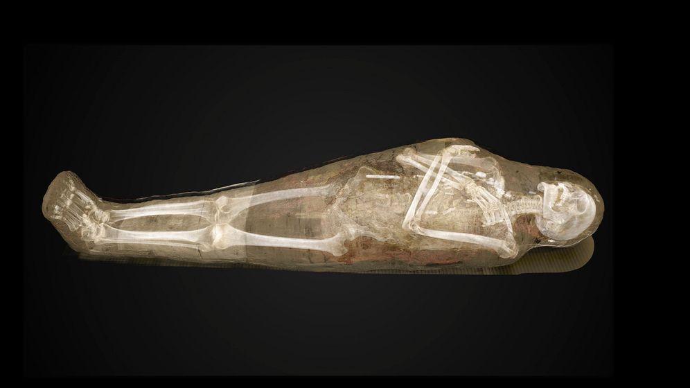 Mumien auswickeln: Schicht für Schicht