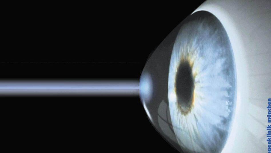 Ein Laserstrahl trifft auf das Auge (Illustration): Lasik-OP ist umstritten