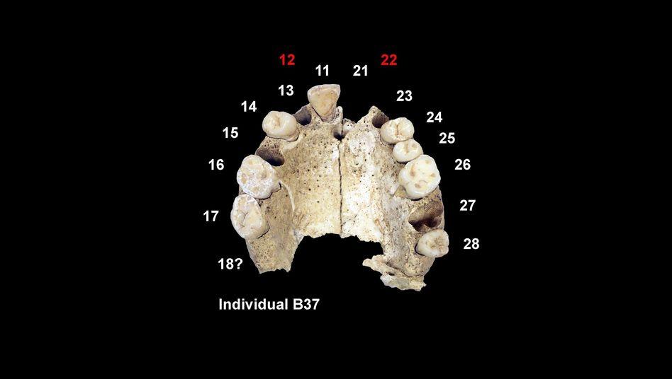 9000 Jahre alter Kiefer mit Zähnen: Man blieb offenbar unter sich