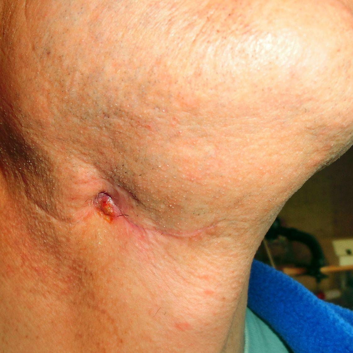 lymphknoten am hals geschwollen