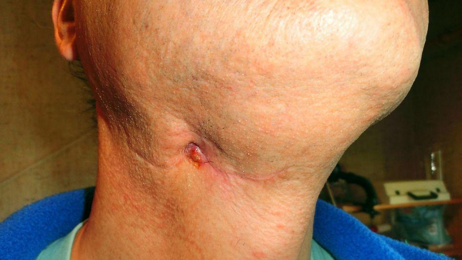 18 Monate lang verschlimmerte sich die Wunde am Hals