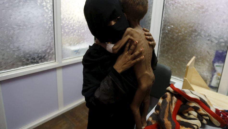 Mutter mit Kind auf einer Intensivstation: Vom Hunger gezeichnet