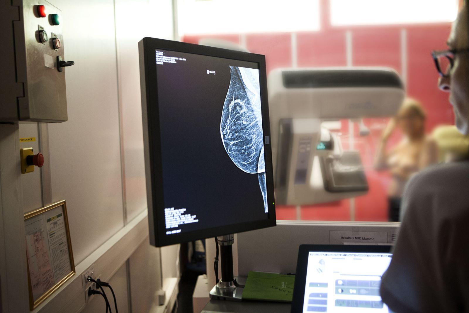EINMALIGE VERWENDUNG Röntgen der weiblichen Brust / Brustkrebsfrüherkennung