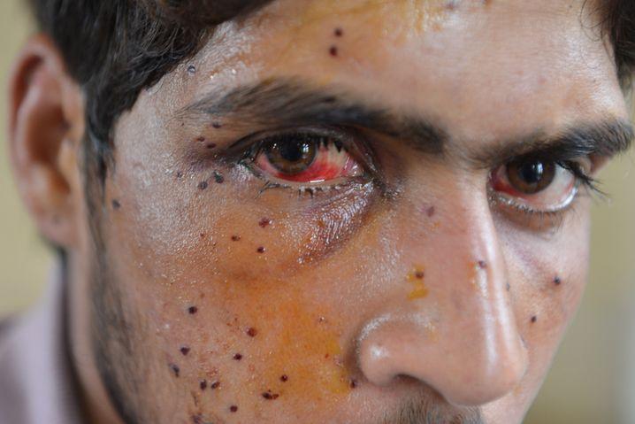 A wounded Kashmiri in Srinagar