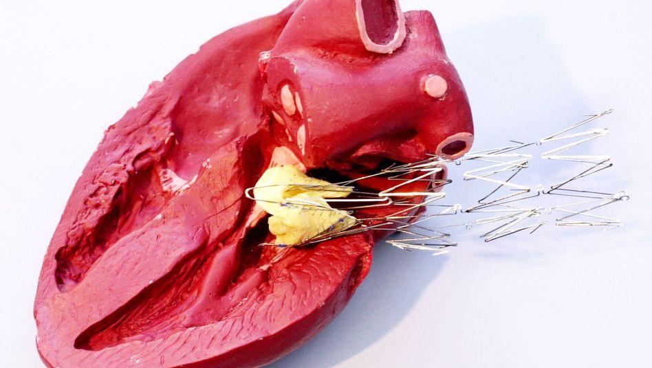 Aortenklappen-Stent und Herzklappe (Modell): Behandlung mit nicht zugelassenen Medizinprodukten?
